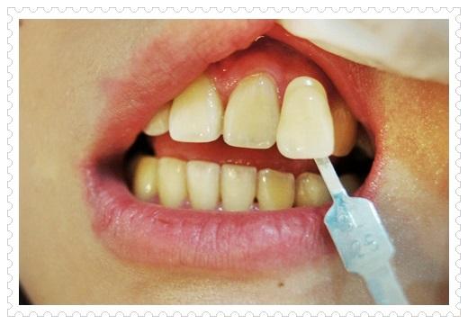 台北,牙齒美白,牙醫診所,牙醫,冷光美白,冷光牙齒美白,牙齒冷光美白,台北冷光美白,台北牙齒美白,冷光美白診所,冷光牙齒美白推薦,牙齒冷光美白分享,冷光牙齒美白介紹,牙齒冷光美白推薦,台北牙齒冷光美白,牙齒冷光美白分享,台北冷光牙齒美白,冷光牙齒美白推薦,冷光美白牙齒,牙齒冷光美白分享,台北牙齒美白推薦ptt,台北冷光牙齒美白推薦ptt